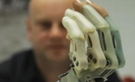 Un student din Iaşi a construit o mână bionică. Dispozitivul ajută şi la operaţii chirurgicale