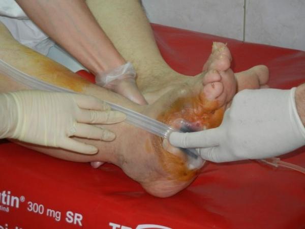 Intervenţie reuşită pentru salvarea unui picior diabetic