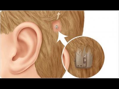 Implantul cohlear: cu cât mai timpuriu, cu atât mai bine