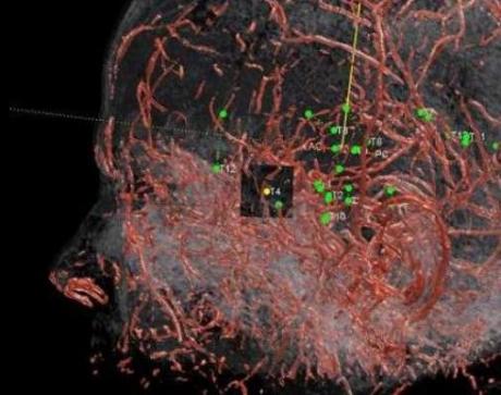 Implantul de electrozi care ajută la vindecarea epilepsiei a fost un succes