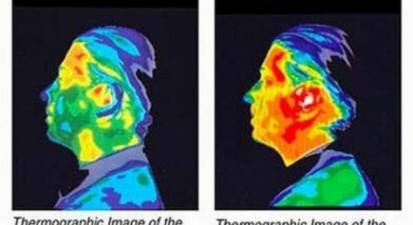 """""""Creierul uman este pur şi simplu prăjit!"""" Ce efecte au telefoanele mobile asupra craniului nostru"""