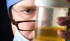 Cancerul la vezica urinară, detectat printr-un test simplu