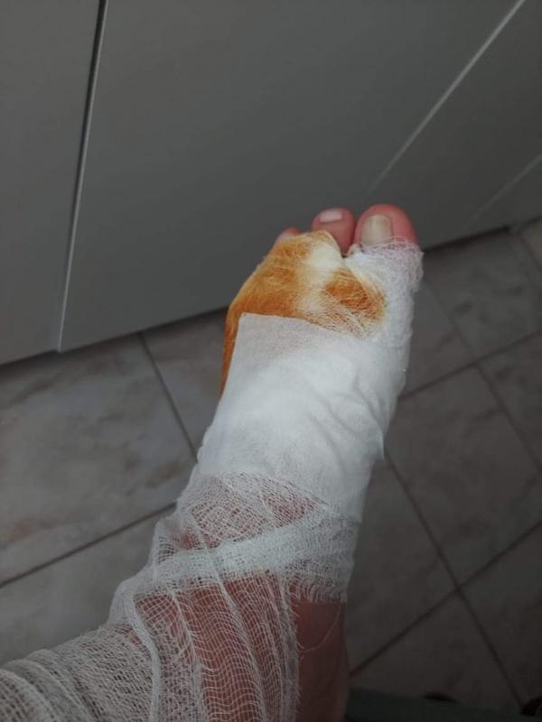O persoană rănită la ștrandul Carei